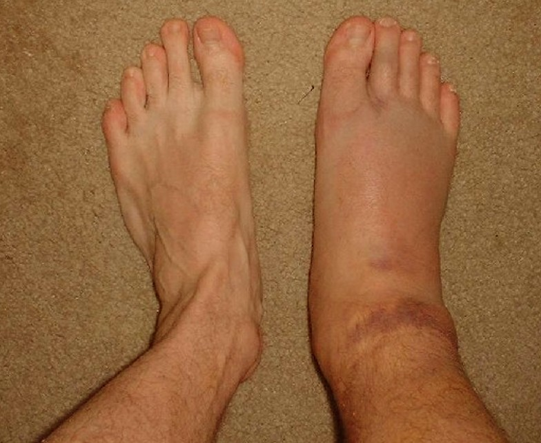 swollen ankles - treatment, pictures, pregnancy, symptoms, causes, Skeleton