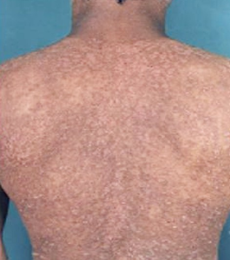 Maculopapular Rash - Pictures, Causes, Treatment, Diagnosis