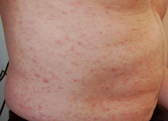 Adult Body Rash 120