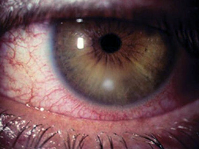 corneal ulcer pictures 2