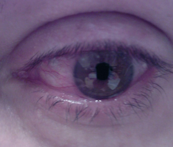 corneal ulcer pictures 4