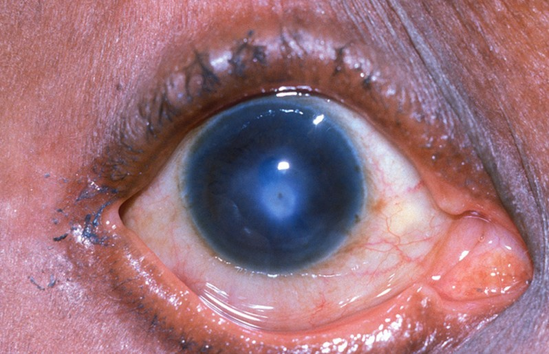 corneal ulcer pictures
