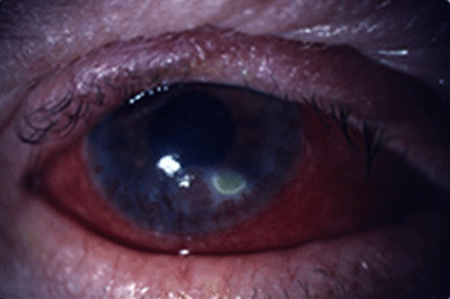 What Is Mps Disease >> Corneal Ulcer - Pictures, Symptoms, Causes, Treatment - (2018 - Updated)