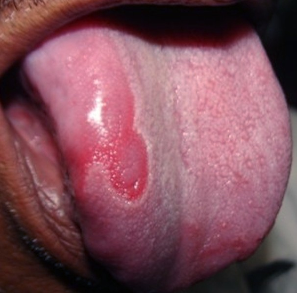 Geographic Tongue --- Top 10 Causes and Cures