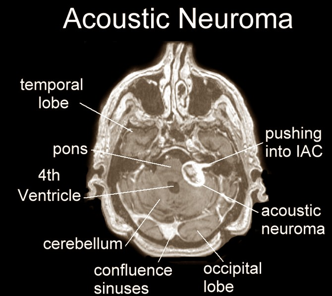 acoustic neuroma Vestibular schwannomas -- commonly called by the misnomer, acoustic neuroma.