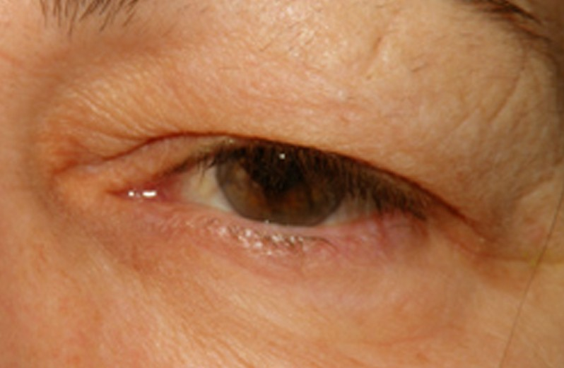 blocked tear duct pictures