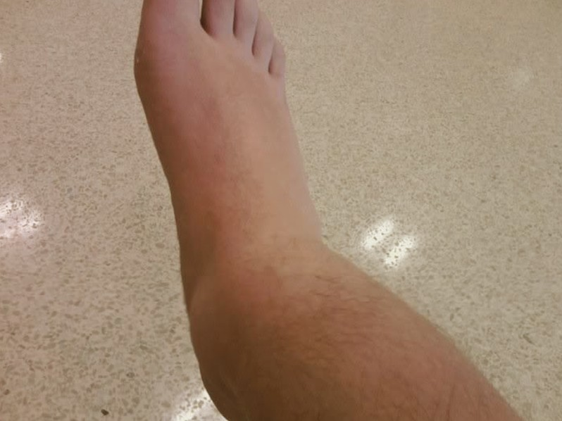 broken ankle pictures 2