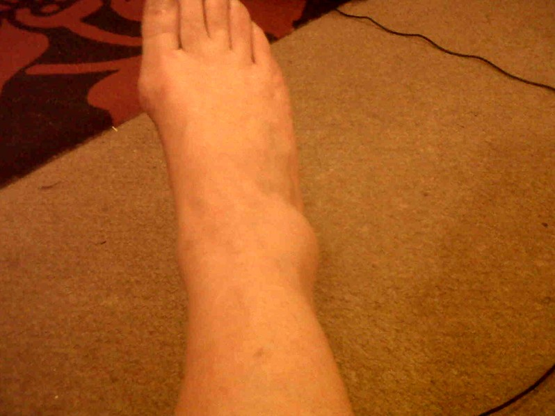 broken ankle pictures 3