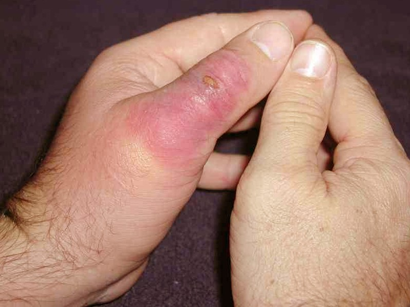 brown recluse spider bite   pictures symptoms stages