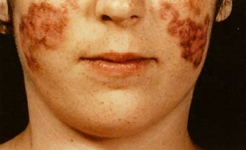systemic lupus erythematosus pictures 3