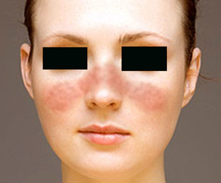 systemic lupus erythematosus pictures