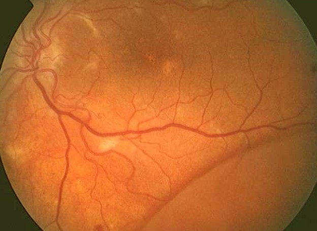 Detached Retina - Pictures, Recovery time, Symptoms ...