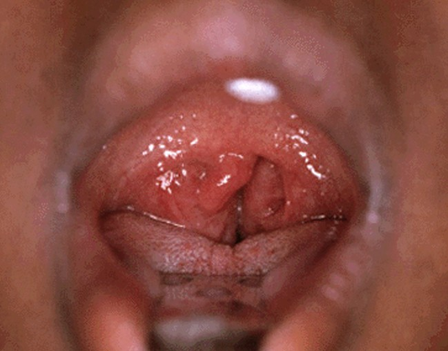 enlarged tonsils pictures 3
