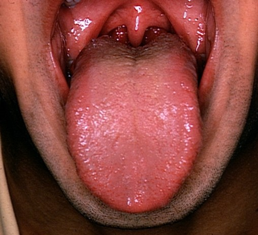 ▷ Enlarged Tonsils - Pictures, Symptoms, Causes, Treatment - (2018 ...