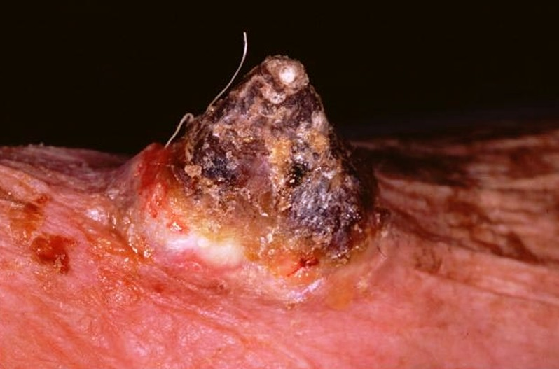 cutaneous horn pictures 3