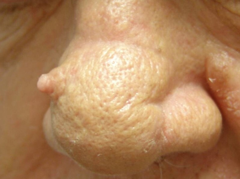 Cutaneous Horn: Background, Pathophysiology, Epidemiology