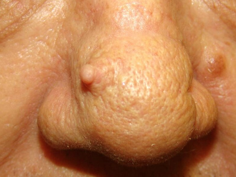 Cutaneous Horn - Pictures, Symptoms, Causes, Removal ...