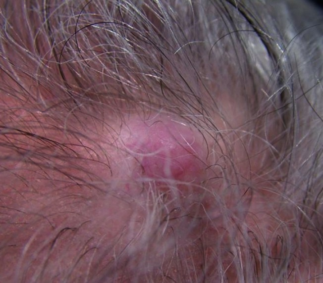 pilar cysts on scalp