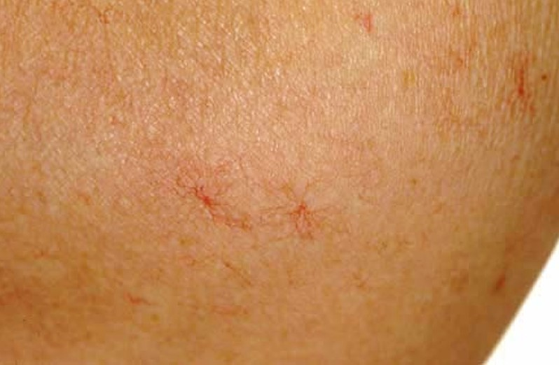 spider angioma pictures 2
