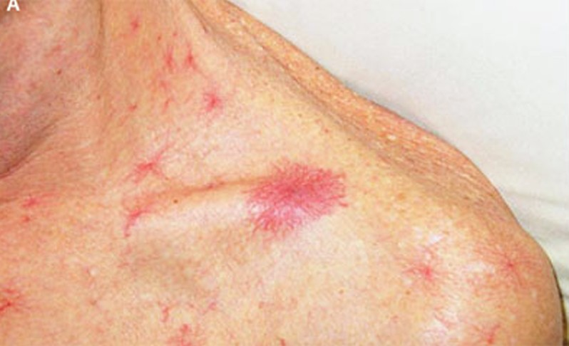 spider angioma - symptoms, causes, pictures, treatment, Skeleton