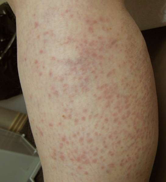 viral exanthem pictures 4
