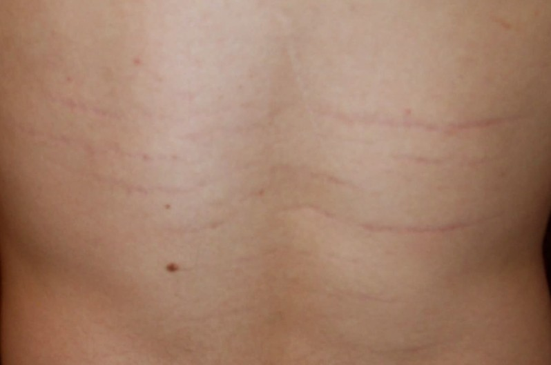 Bartonella Symptoms Treatment Pictures Causes