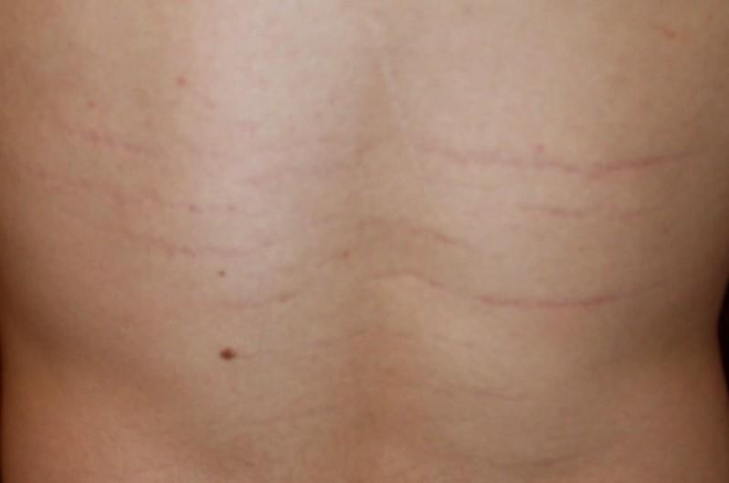 bartonella rash pictures 3