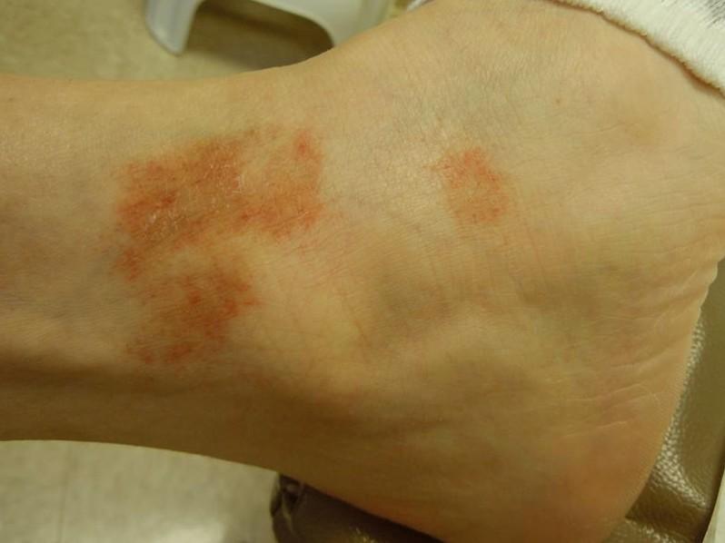 capillaritis pictures 2
