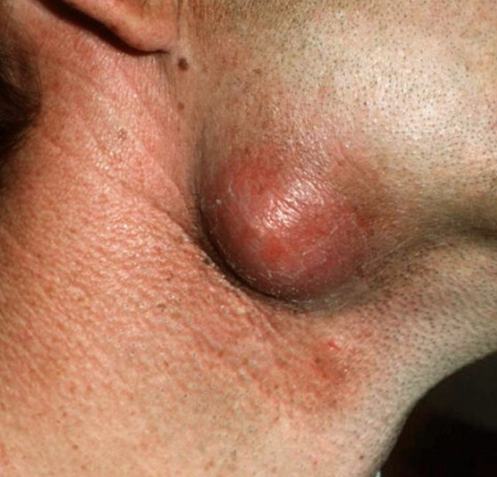 Epidermal cyst Pictures - Picsearch