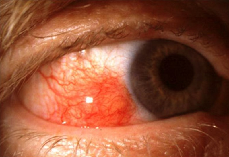 episcleritis pictures