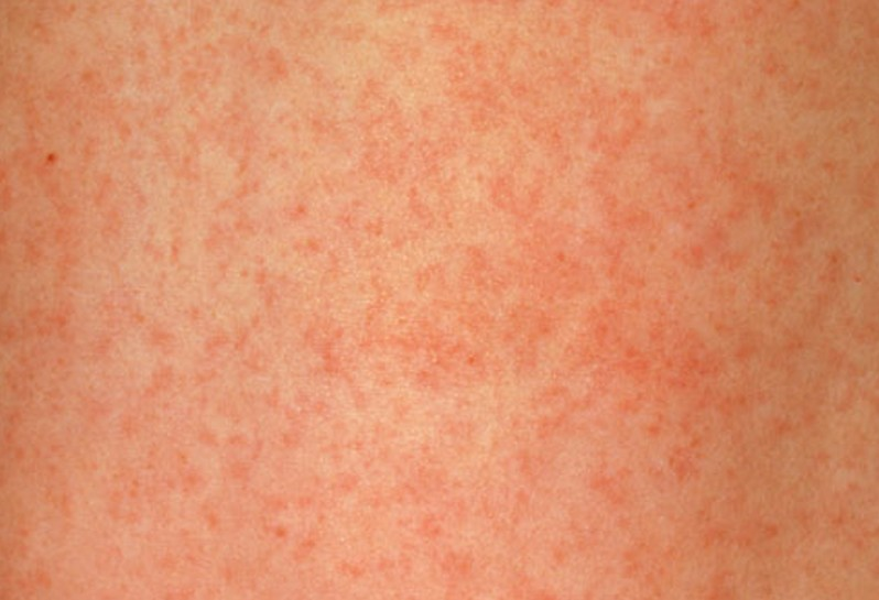 Healthool German Measles - Pictures, Symptoms, Causes, Treatment - (2021 - Updated)