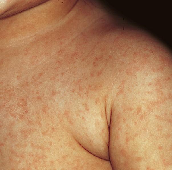 Rubella (German Measles) - KidsHealth