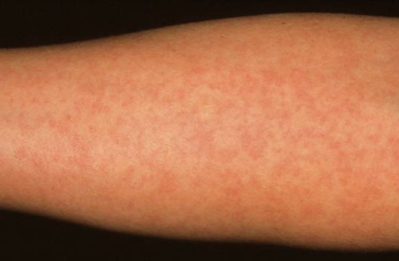 measles - photo #20