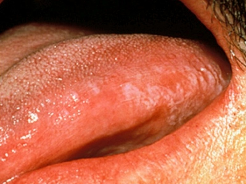 Hairy Leukoplakia - Pictures, Symptoms, Causes, Diagnosis ...