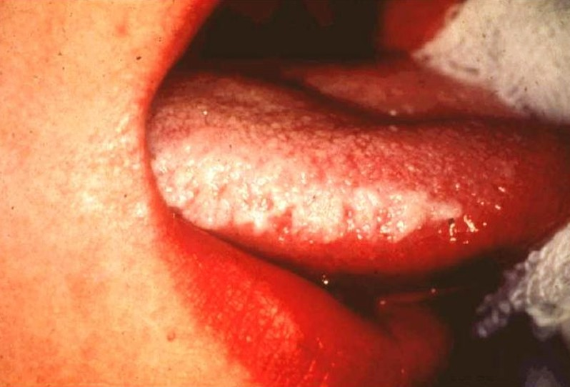 hairy leukoplakia - pictures, symptoms, causes, diagnosis, treatment, Skeleton
