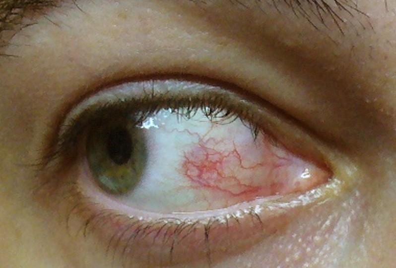 Herpes Virus In Eye Cat