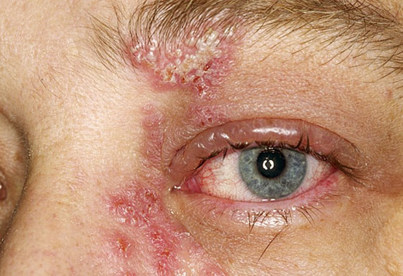 herpes of the eye pictures 3