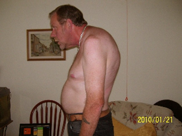 kyphosis pictures 3