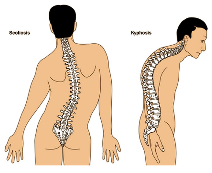 kyphosis pictures