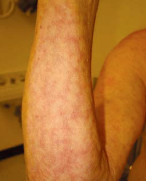 Livedo reticularis pictures symptoms diagnosis causes for Fish oil rash