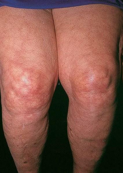 Livedo Reticularis Pictures Symptoms Diagnosis Causes