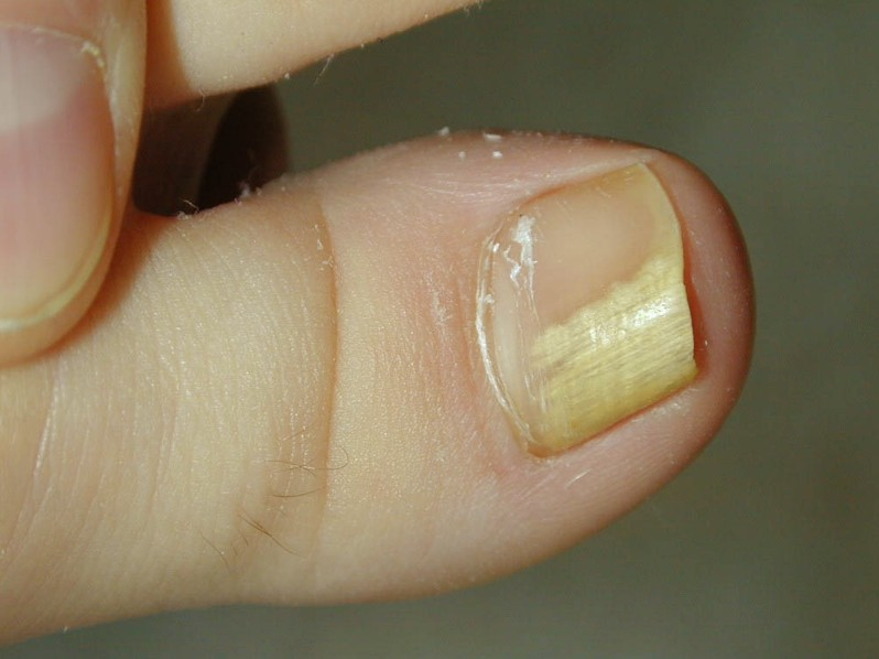 Onycholysis (Nail Lifting) - Nail Disorders - Skin Care ...