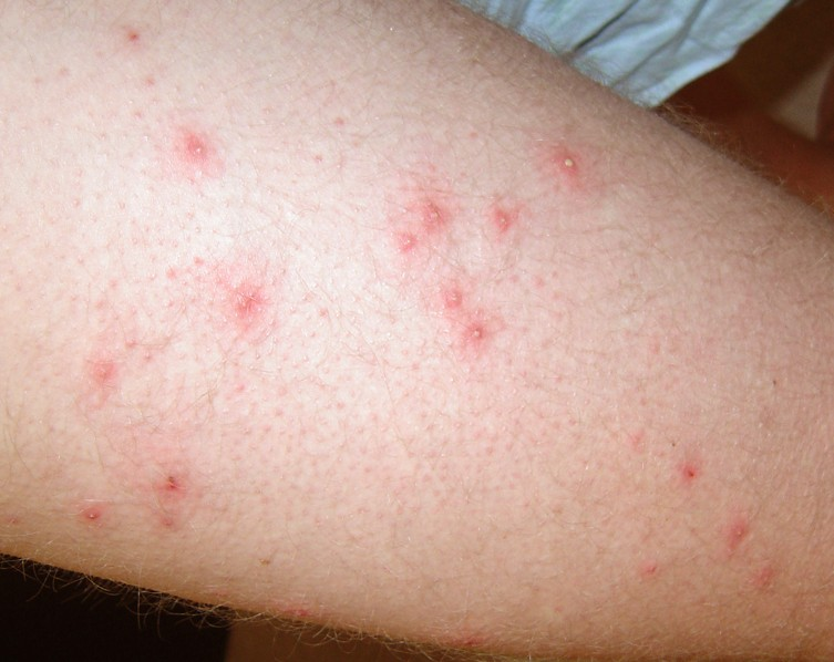 Pseudomonas Folliculitis Symptoms Treatment Pictures