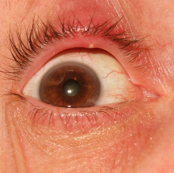 stye in eye pictures #10