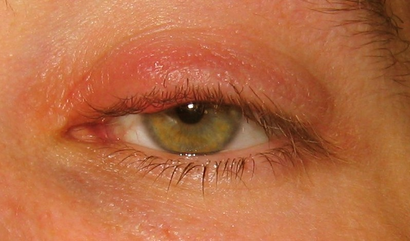 stye pictures 4
