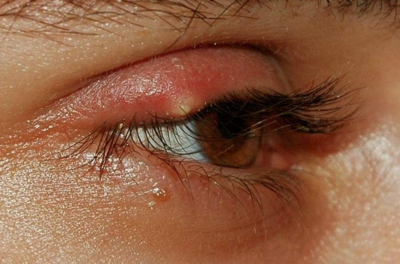 stye pictures 6