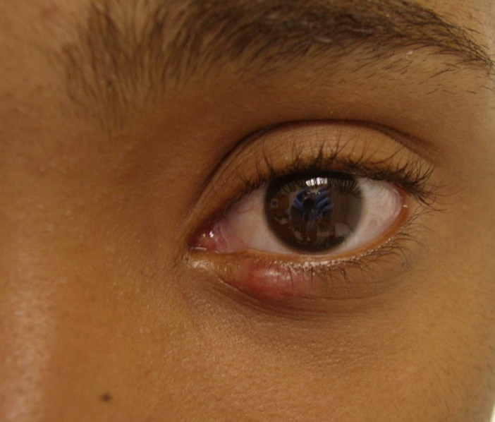 stye pictures