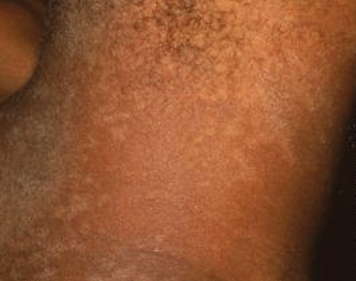 Tinea Versicolor: Cause, Symptoms, and Treatments - WebMD