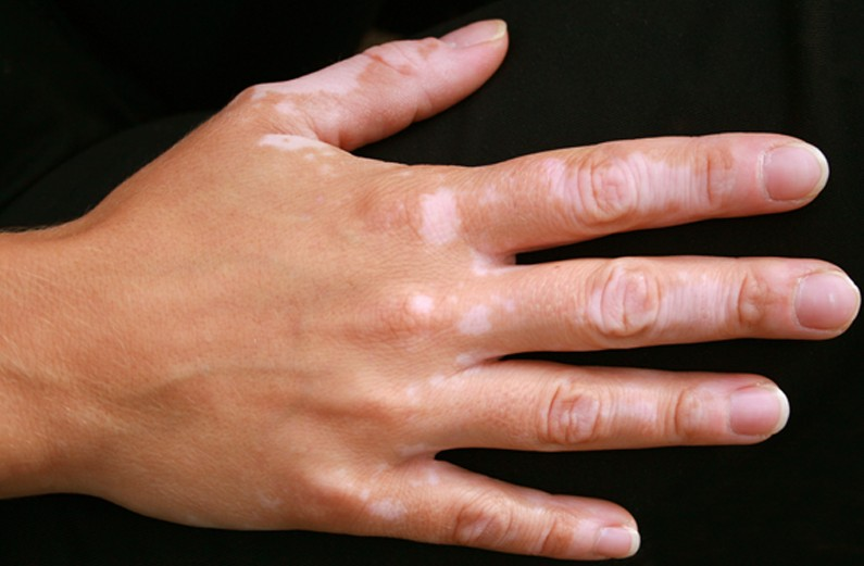 Vitiligo - Pictures, Symptoms, Causes, Treatment - (2021 - Updated)