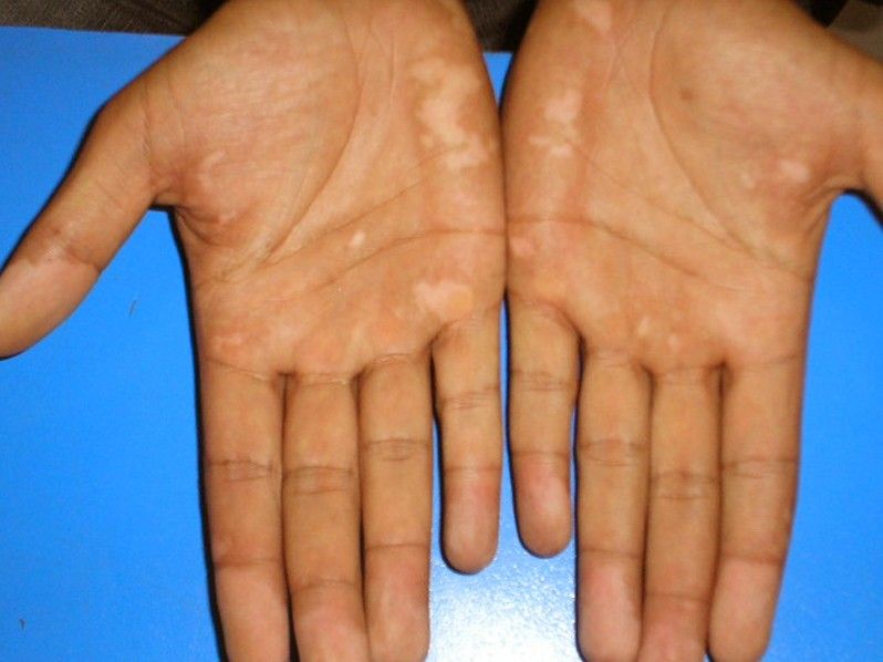 Vitiligo Pictures Symptoms Causes Treatment 2019